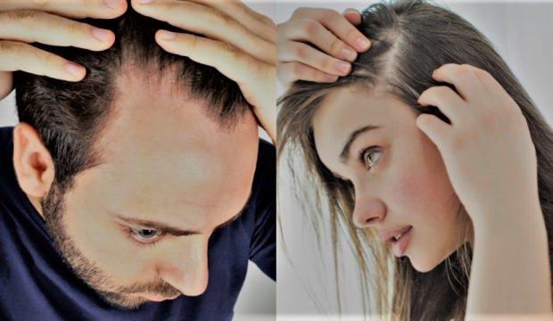Saç dökülmesi nasıl geçer? Saç dökülmesini yok eden doğal karışım