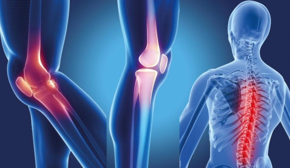 Osteopeni (Düşük kemik yoğunluğu) nedir ve belirtileri nelerdir? Osteopeninin tedavisi var mıdır?