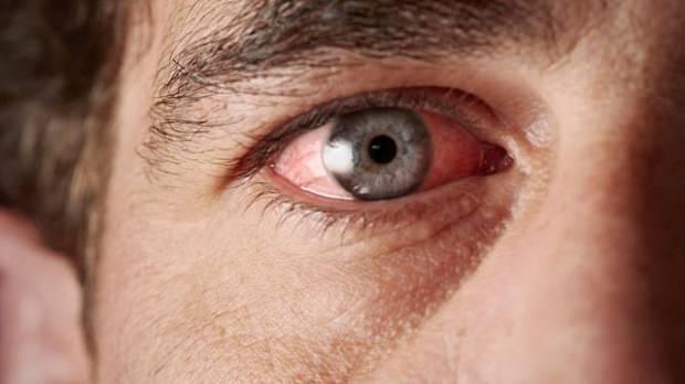 internetten alınan lens ve güneş gözlüklerine dikkat