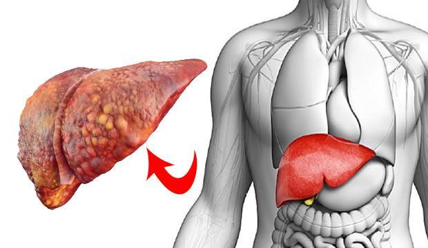 Karaciğer yağlanmasının tedavisi: Karaciğer yağlanmasını ne temizler?