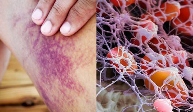 Trombosit neden düşer: Trombosit düşüklüğü tedavisi, nasıl yükseltilir?
