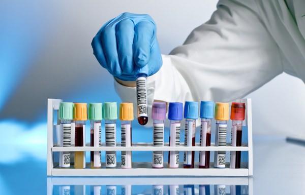 trombosit düşüklüğü tedavisi