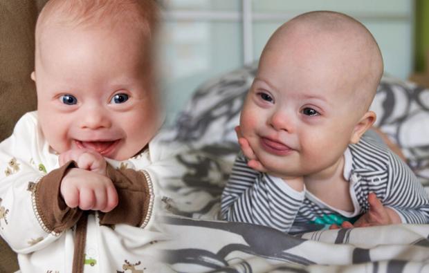 yeni doğan bebeklerde down sendromu belirtileri