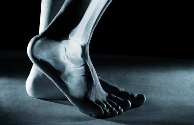 topuk ağrısı nasıl geçer