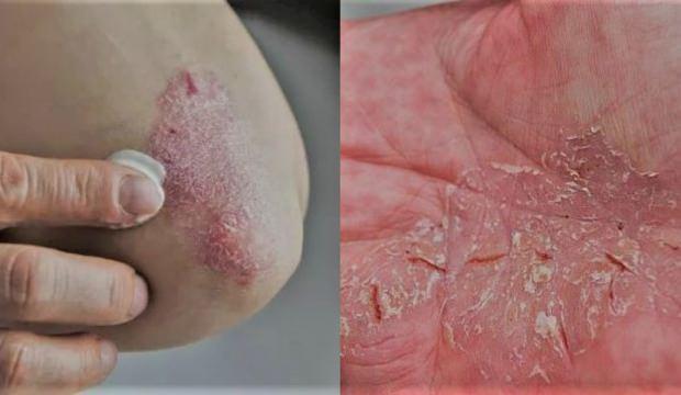 Kaşıntılı Cilt Hastalıkları belirtileri: Bulaşıcı deri hastalıkları nedenleri...