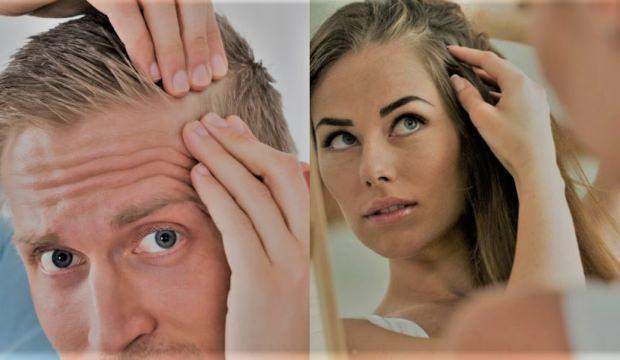 Saç dökülmesi sebepleri - tedavisi | Artık saç dökülmesini önlemek için...