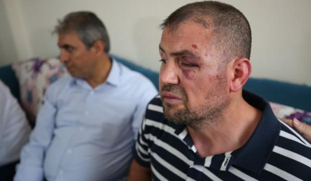 Gaziyi öldüresiye döven saldırganlar tutuklandı