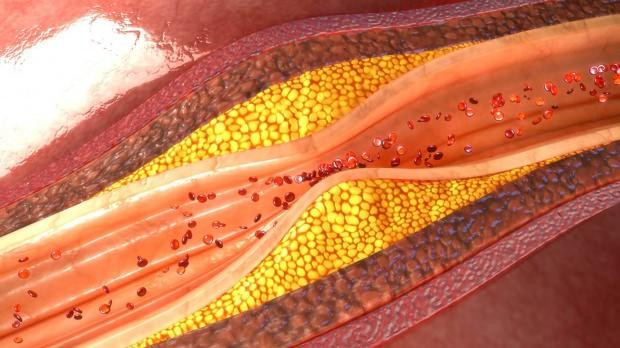 damar sertliği belirtileri