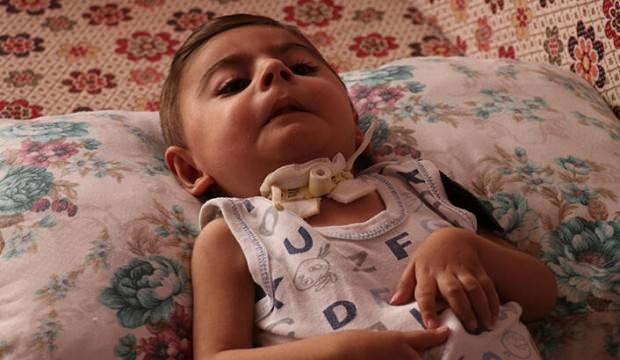 Muhammed Salih savaşıyor! 'Oğlum bu acıları kaldıramaz'