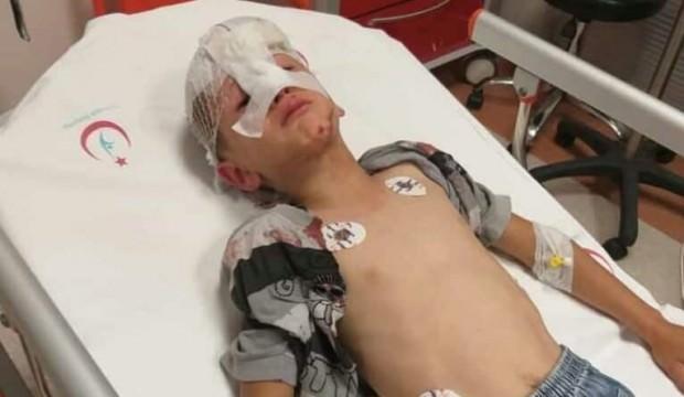 Korkunç olay! Küçük çocuk bir anda kanlar içinde yere yığıldı