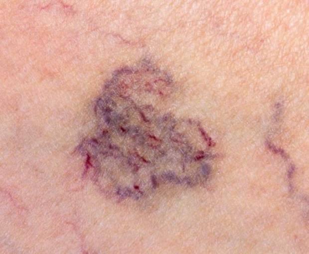 kılcal damar çatlaması bitkisel ve lazer tedavisi