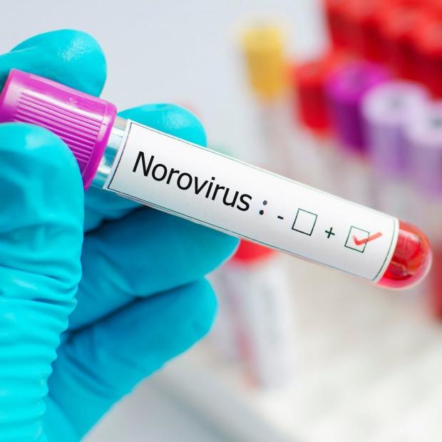norovirüsü nedir ve hangi hastalıklara neden olur