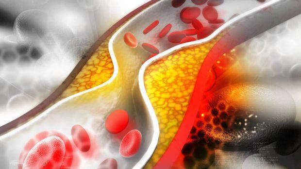 kolesterol belirtileri nelerdir