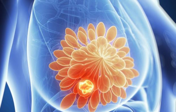 meme kanseri nasıl olur