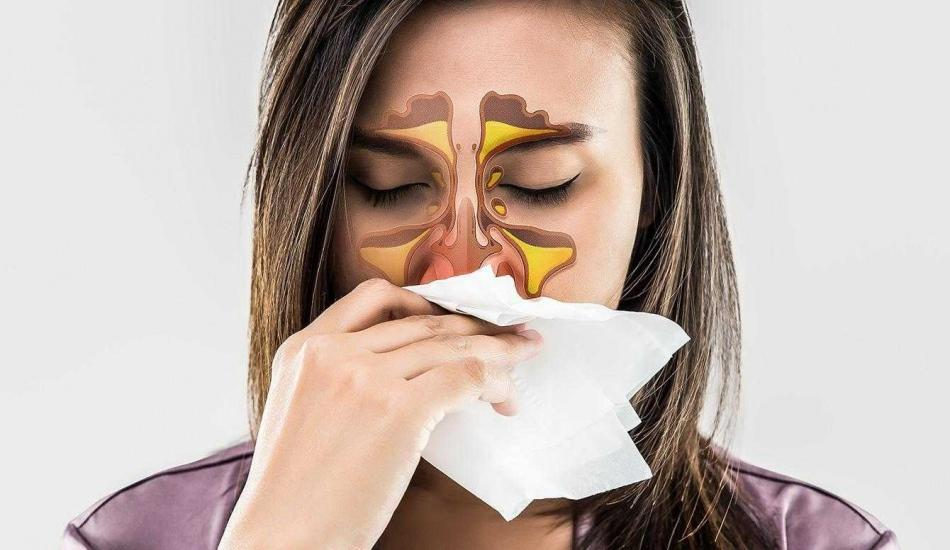 Alerji nedir? Alerjik rinit belirtileri nelerdir? Kaç çeşit alerji vardır?