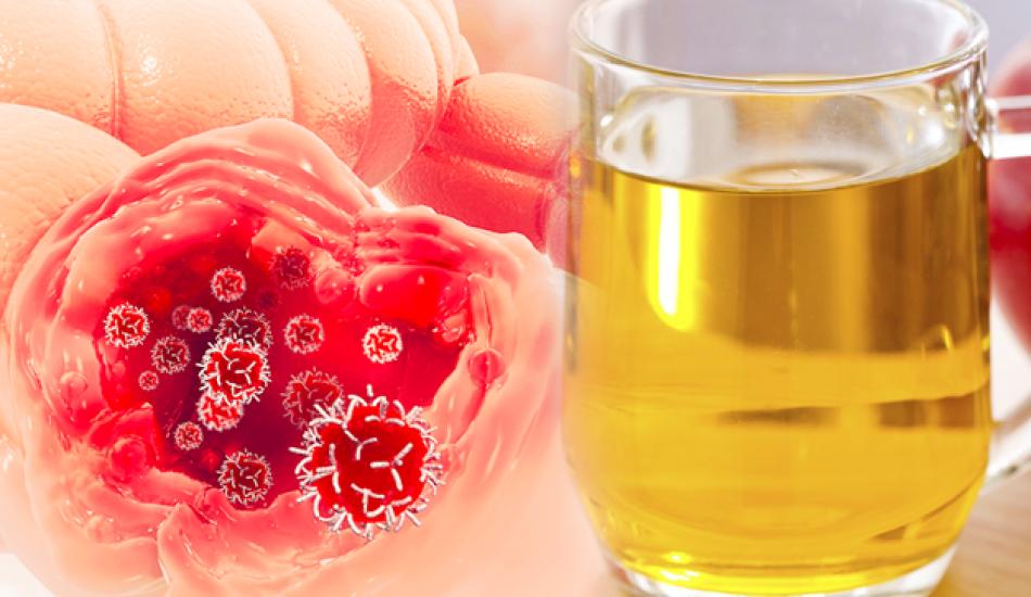 Kolon (kalın bağırsak) kanserinin belirtileri nelerdir ve tedavi yöntemi var mıdır? Kolon temizliği nasıl yapılır?