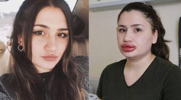 hatalı botoks