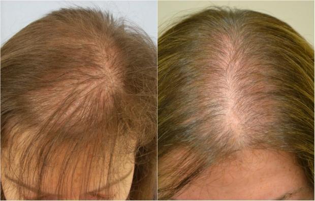 saç dökülmesinin örneği