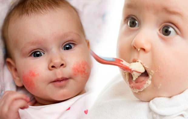 bebeklerde alerji belirtileri
