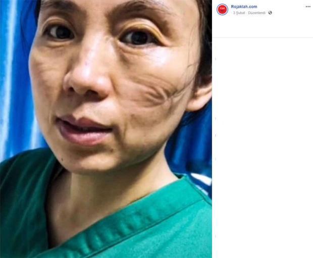 Çinli hemşirelerinin yüzleri ile ilgili görsel sonucu