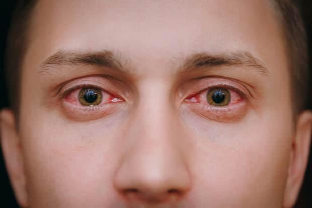 toz taneleri göz alerjisine neden olur