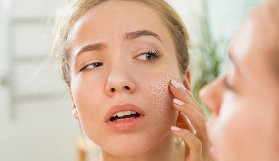 Cilt neden kurur? Kuru cilde ne yapılır? Kuru cilt için en etkili ...