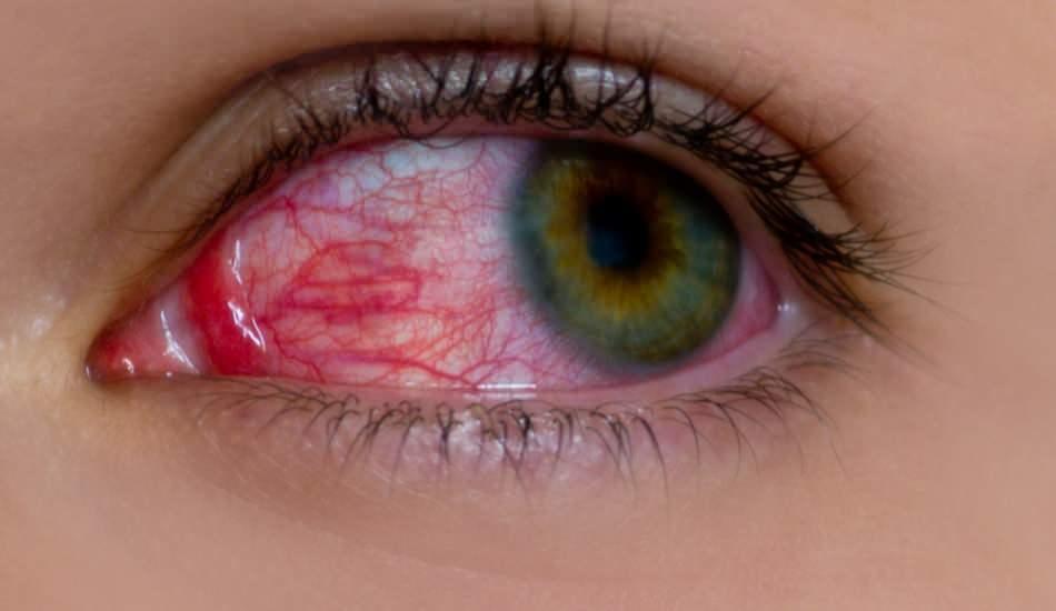 Göz alerjisi neden olur? Göz alerjisinin belirtileri nelerdir? Göz alerjisine ne iyi gelir?