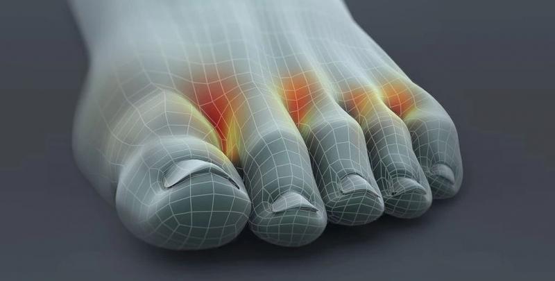 ayak mantarının en sık görüldüğü yer parmak aralarıdır
