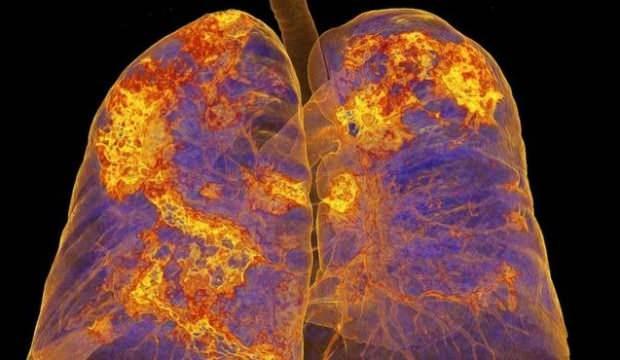 Koronavirüs vücudu nasıl etkiliyor? 1