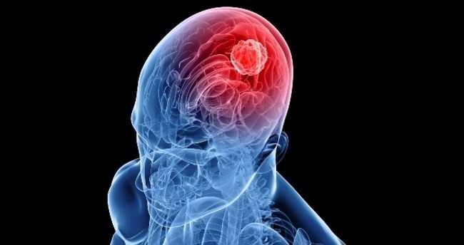 hantavirüsü vücudun fonksiyonlarını bozulduğundan beyin kendini korumak için şoka girer