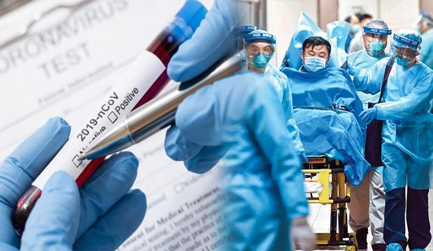 Korona Virüsü'nün yeni belirtisi hangi sorunlara sebep oluyor   Gün gün belirtiler nelerdir?