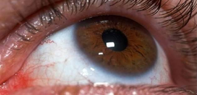 Gözdeki hangi belirti hangi hastalığın habercisi?