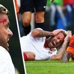 Yıldız futbolcunun sahada kulağı koptu!