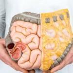 GAPS diyeti nasıl yapılır? Sağlığımıza ne gibi yararları vardır?