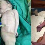 'Denizkızı' doğdu: 4 saat yaşadı