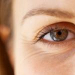 Göz çevresindeki kırışıklıklardan kurtulmak için ne yapılmalı?