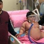 Yürek burkan olay! Yağız bebek 55 kiloya çıktı