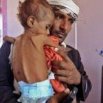 Yemen trajedisi: Para için 3 yaşındaki çocuklarını satmaya başladılar