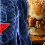 Trans yağ hangi besinlerde bulunuyor? Trans yağın neden olduğu hastalıklar...