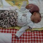 İki kafalı doğan Elif bebeğin anne-babası yardım istiyor