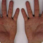 Zona hastalığı (Gece yanığı) nedir? Zona hastalığının belirtileri nelerdir?