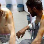 Ayı saldırısında yaralandı, askeri helikopter gidip kurtardı