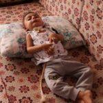 Küçücük bedeni ile yaşam savaşı veriyor