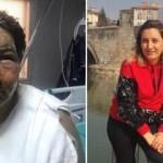 Cezaevinden izinli çıktı, eski eşini yağ ile yaktı