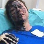 Yüzüne yanıcı madde atan zanlılar serbest bırakıldı