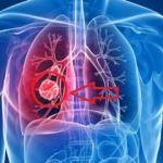 Akciğer kanserinin belirtileri: Akciğer kanserinin evreleri ve tedavisi