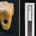 Bilim dünyası şaşkın! Türkiye'deki kazıda bulundu! İnanılmaz diş detayı...