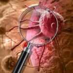 Kanser nedir? Kanser belirtileri nelerdir? Kaç çeşit kanser vardır? Kanser nasıl önlenir?