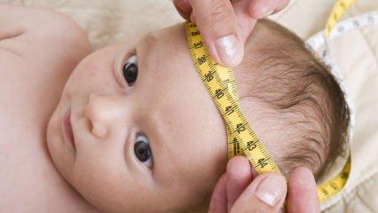 Bebeklerde baş çevresi ölçümü nasıl yapılır? Bebeklerde baş çevresi kaç cm olmalı?