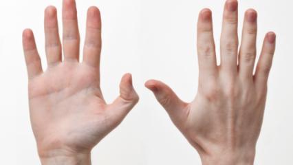 Rüyada altı parmak görmek ne anlama gelir? Rüyada altı parmak görmenin tabiri...